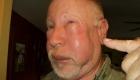 Отек на лице после укуса осы