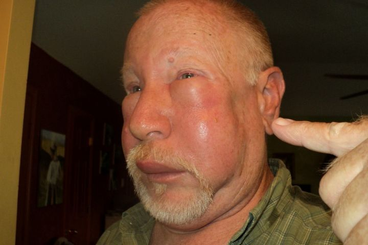 сильная реакция на укус комара что делать