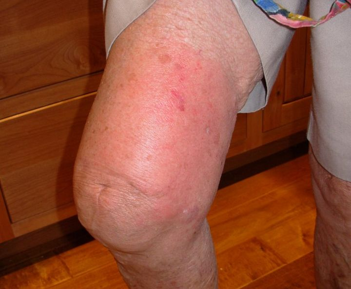 аллергия на укус пчелы лечение