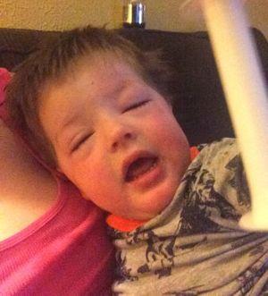 Аллергическая реакция на сельдерей у ребенка