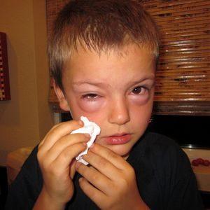 Аллергическая реакция после контакта с кошкой