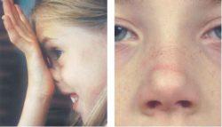 Аллергический салют