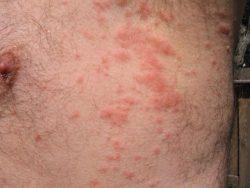 Аллергия на хлорированную воду у мужчины