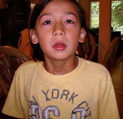 Аллергия на хлорированную воду на лице ребенка