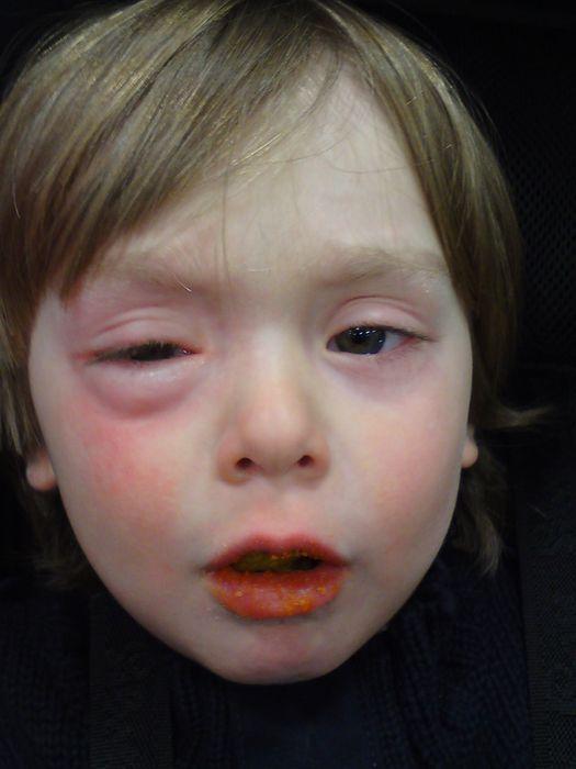 аллергия у взрослых фотографии различной сыпи фото