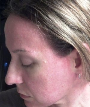 Сыпь от пота на лице