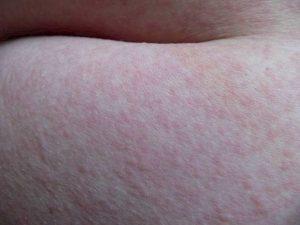 Сыпь от пота после нагрузки