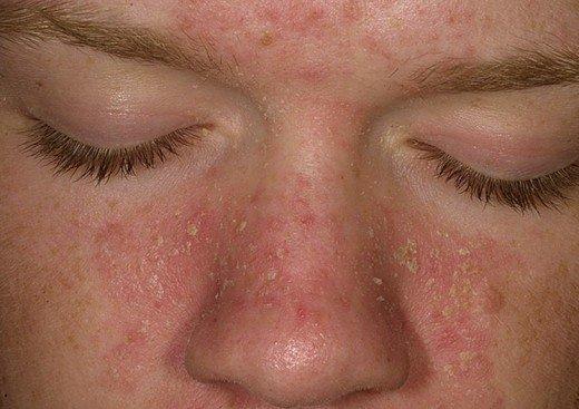 Экзема на лице - фото, симптомы, лечение реакции