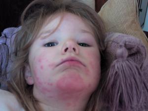 Аллергия на яйцо на лице