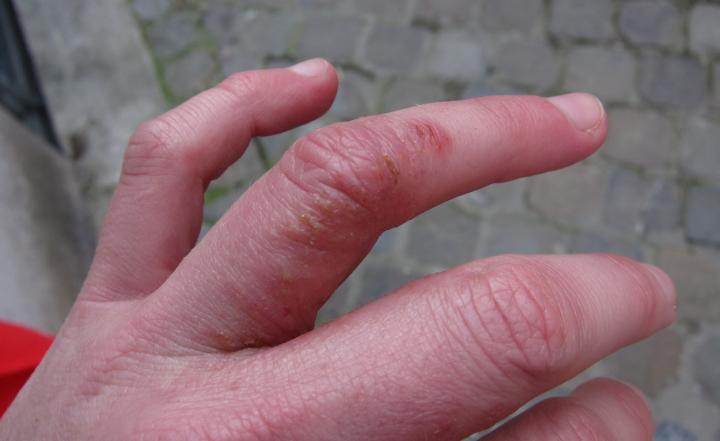 Дисгидротическая экзема на пальцах