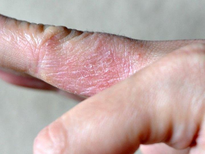 Дифференциальная диагностика микробной экземы и псориаза