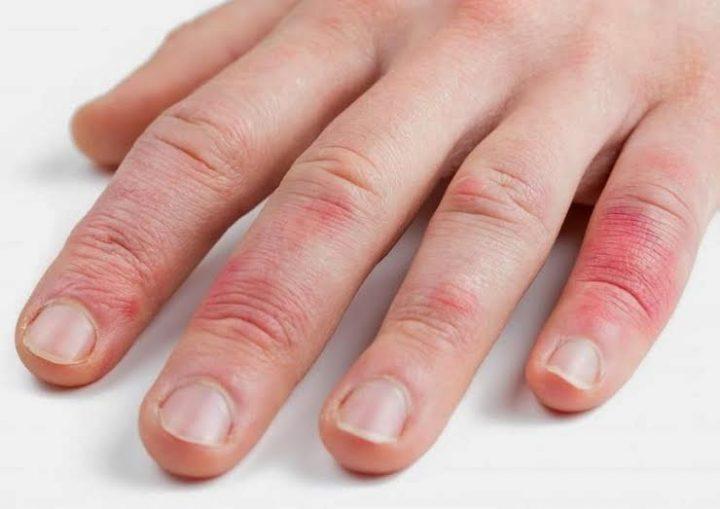 Дифференциальная диагностика атопического дерматита и истинной экземы