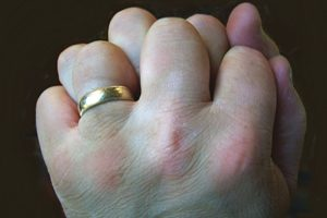 Экзема на костяшках пальцев