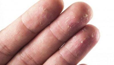 Аллергия - симптомы, причины, методы лечения у взрослых и детей