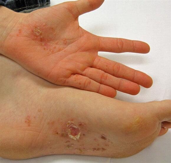 Дисгидротическая экзема на ноге 2