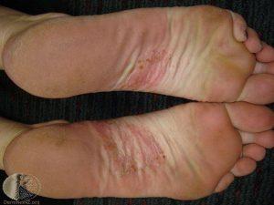 Дисгидротическая экзема на ноге 3