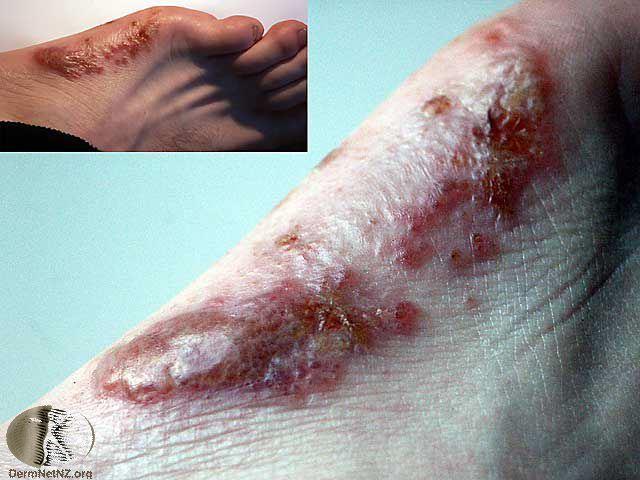 Дисгидротическая экзема на ноге 4