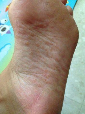 Дисгидротическая экзема на ноге 5