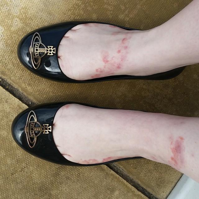 асит от аллергии противопоказания