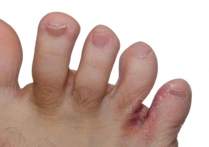 Экзема на пальцах ног 3
