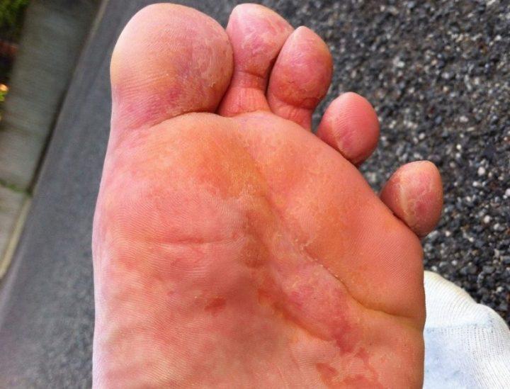 Микотическая экзема на ноге