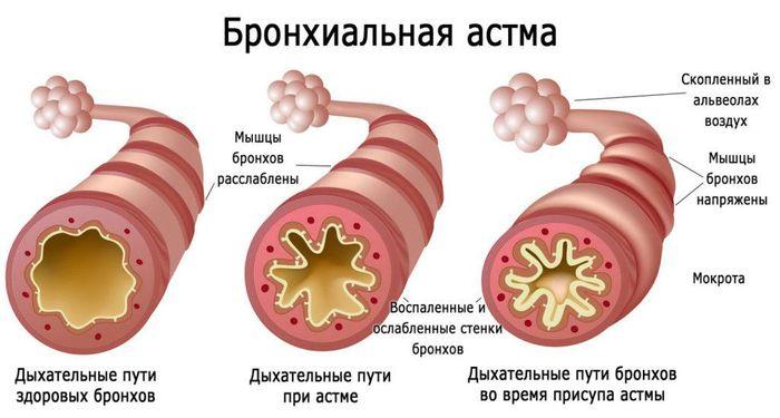Здоровые бронхи и астма