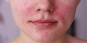 Миниатюра к статье Аллергия на лице — разновидности и методы лечения