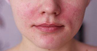 Миниатюра к статье Аллергия на лице - разновидности и методы лечения