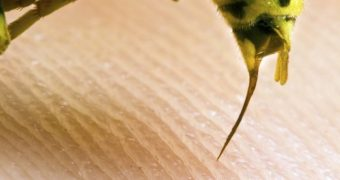 Миниатюра к статье Аллергия на укусы насекомых - как распознать и что делать?